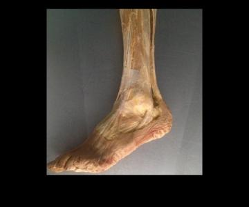Disección pie